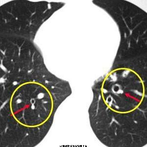 肺癌专项深度体检